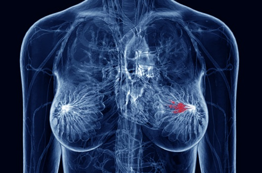 Vaccine For Metastatic Breast Ovarian Cancer Promised By Study News Avalanche