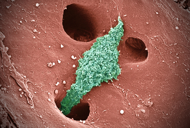 picture of the day: kupffer cells – news avalanche, Human Body