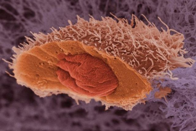 ep-skin-cancer